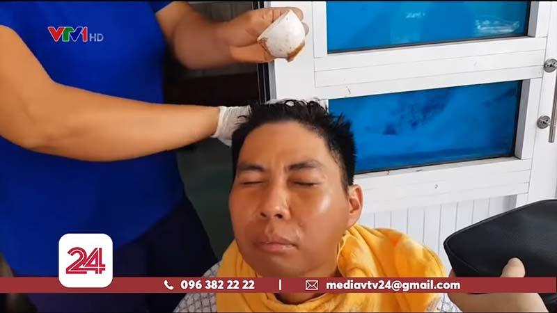 Bắt sâu viêm xoang ở Phú Thọ